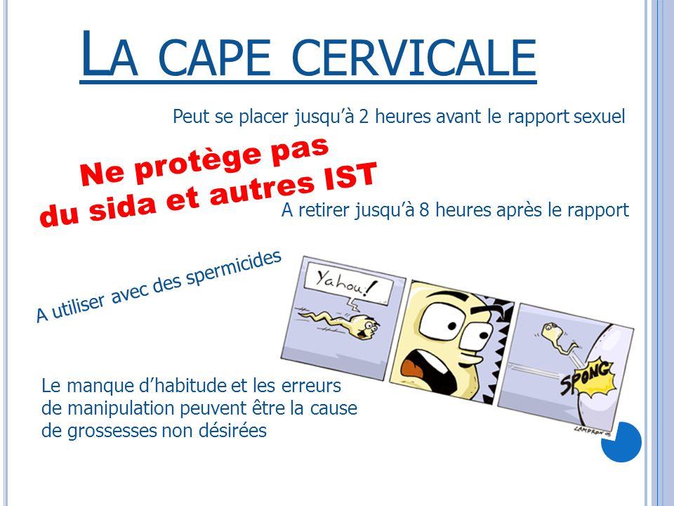 La cape cervicale Ne protège pas du sida et autres IST