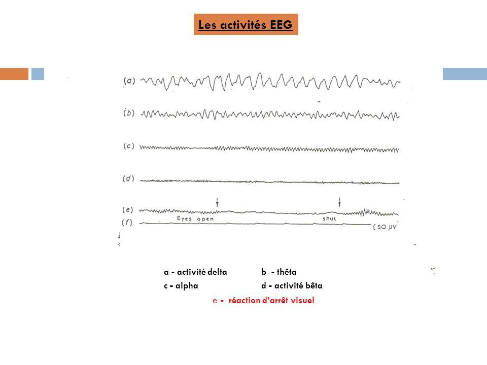 Les activités EEG a - activité delta b - thêta