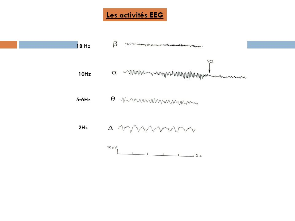 Les activités EEG 18 Hz 10Hz 5-6Hz 2Hz
