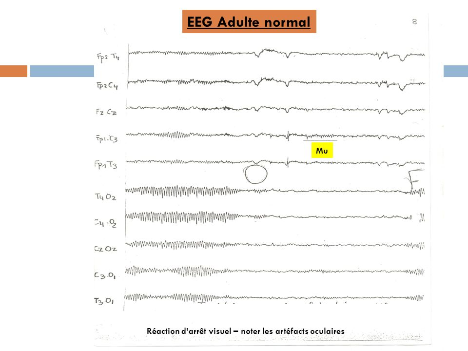 EEG Adulte normal Mu Réaction d'arrêt visuel – noter les artéfacts oculaires