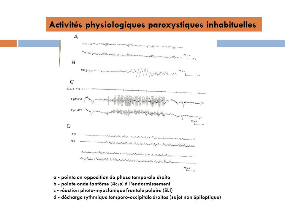 Activités physiologiques paroxystiques inhabituelles