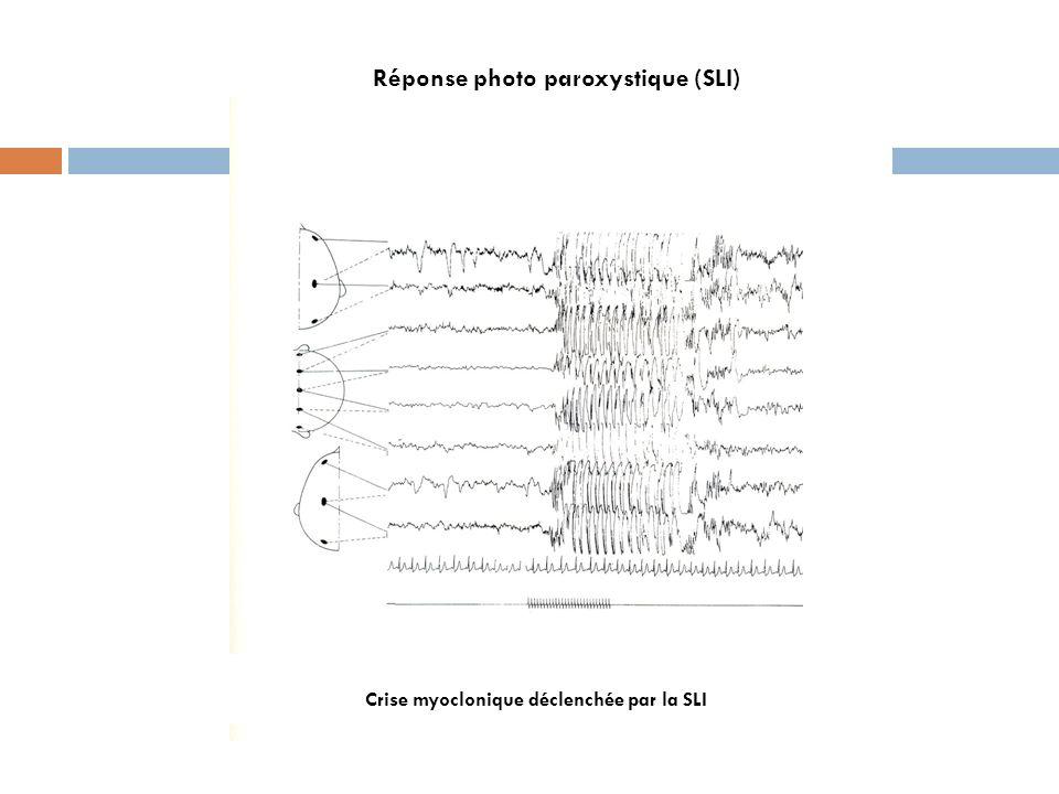 Réponse photo paroxystique (SLI)