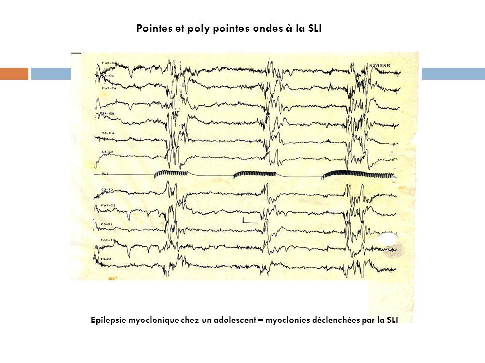Pointes et poly pointes ondes à la SLI