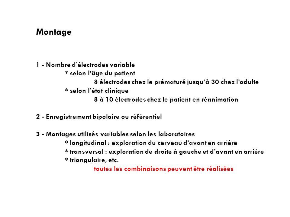 Montage 1 - Nombre d'électrodes variable * selon l'âge du patient