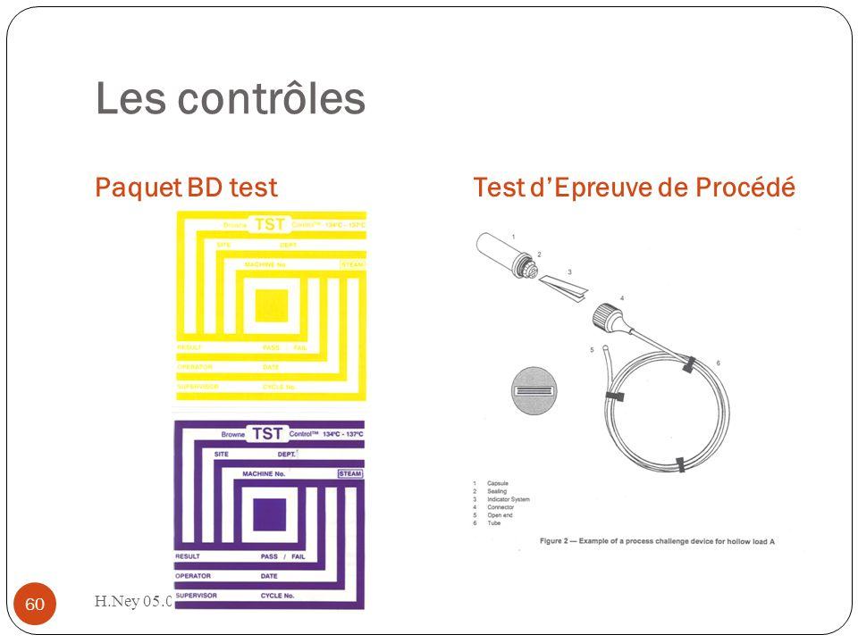 Les contrôles Paquet BD test Test d'Epreuve de Procédé