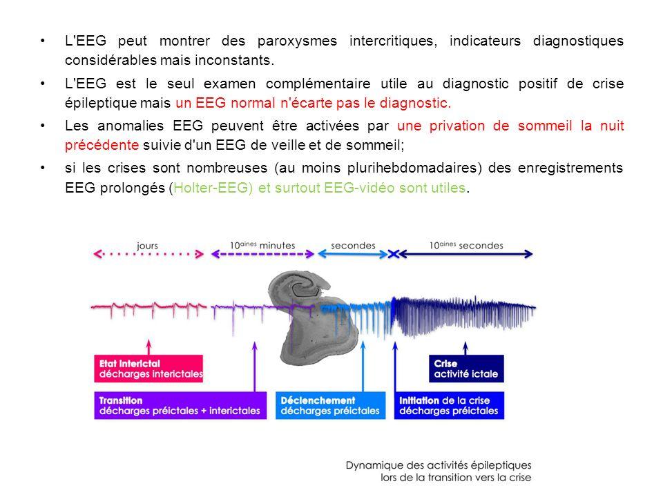 L EEG peut montrer des paroxysmes intercritiques, indicateurs diagnostiques considérables mais inconstants.