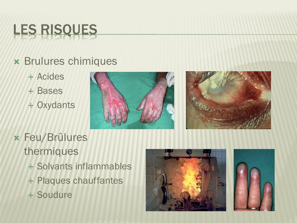 Les risques Brulures chimiques Feu/Brûlures thermiques Acides Bases