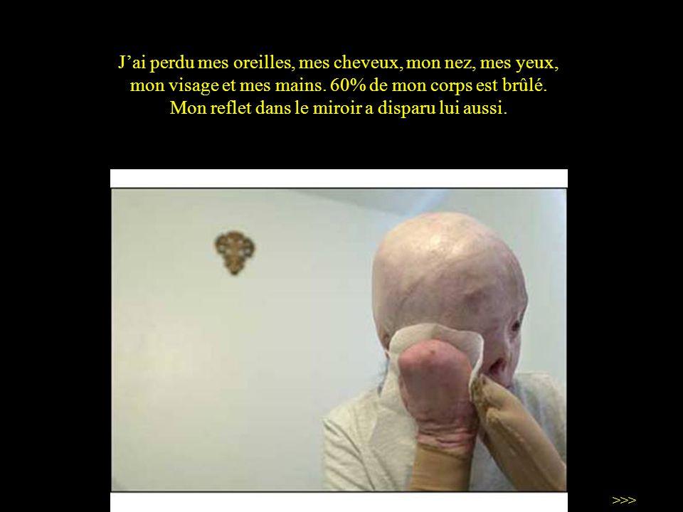 J'ai perdu mes oreilles, mes cheveux, mon nez, mes yeux, mon visage et mes mains. 60% de mon corps est brûlé. Mon reflet dans le miroir a disparu lui aussi.