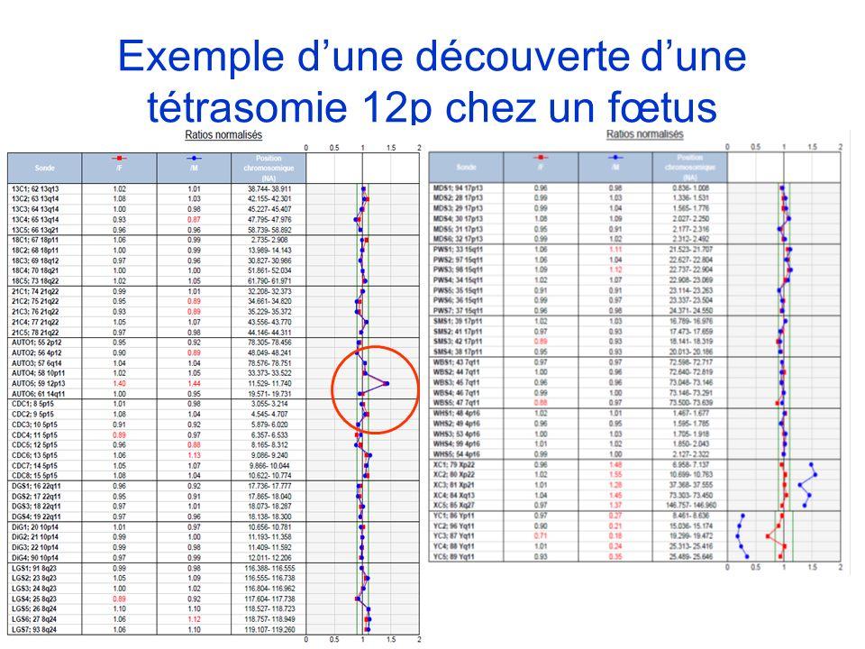Exemple d'une découverte d'une tétrasomie 12p chez un fœtus