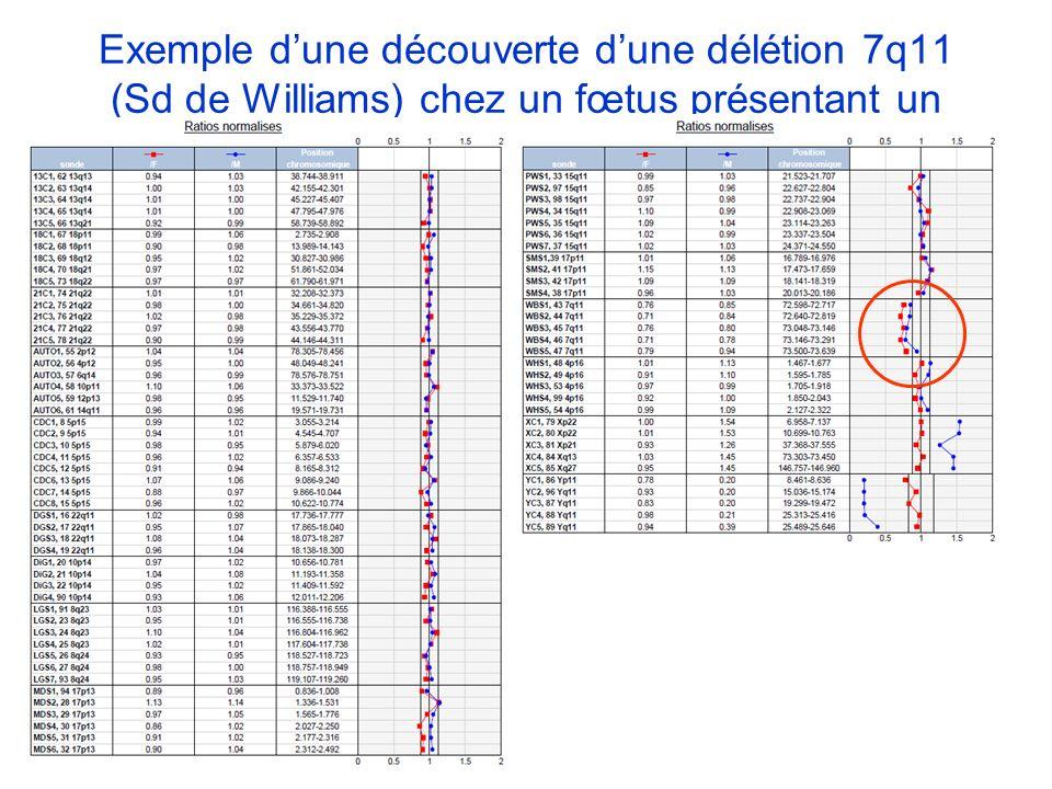 Exemple d'une découverte d'une délétion 7q11 (Sd de Williams) chez un fœtus présentant un RCIU à 34SA