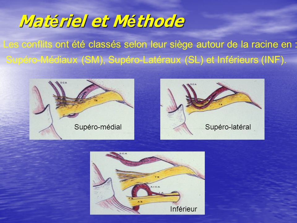 Matériel et Méthode Les conflits ont été classés selon leur siège autour de la racine en :