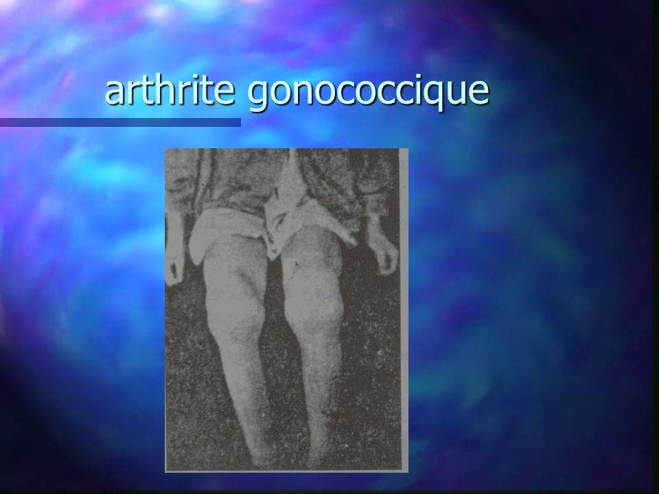arthrite gonococcique