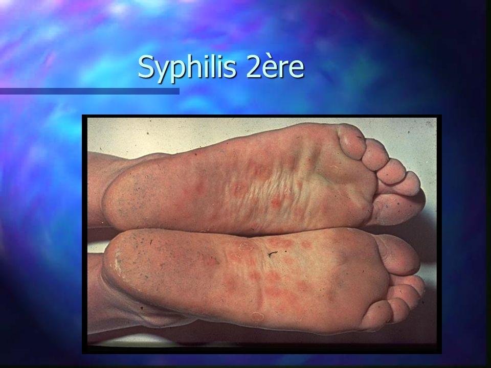 30/03/2017 Syphilis 2ère