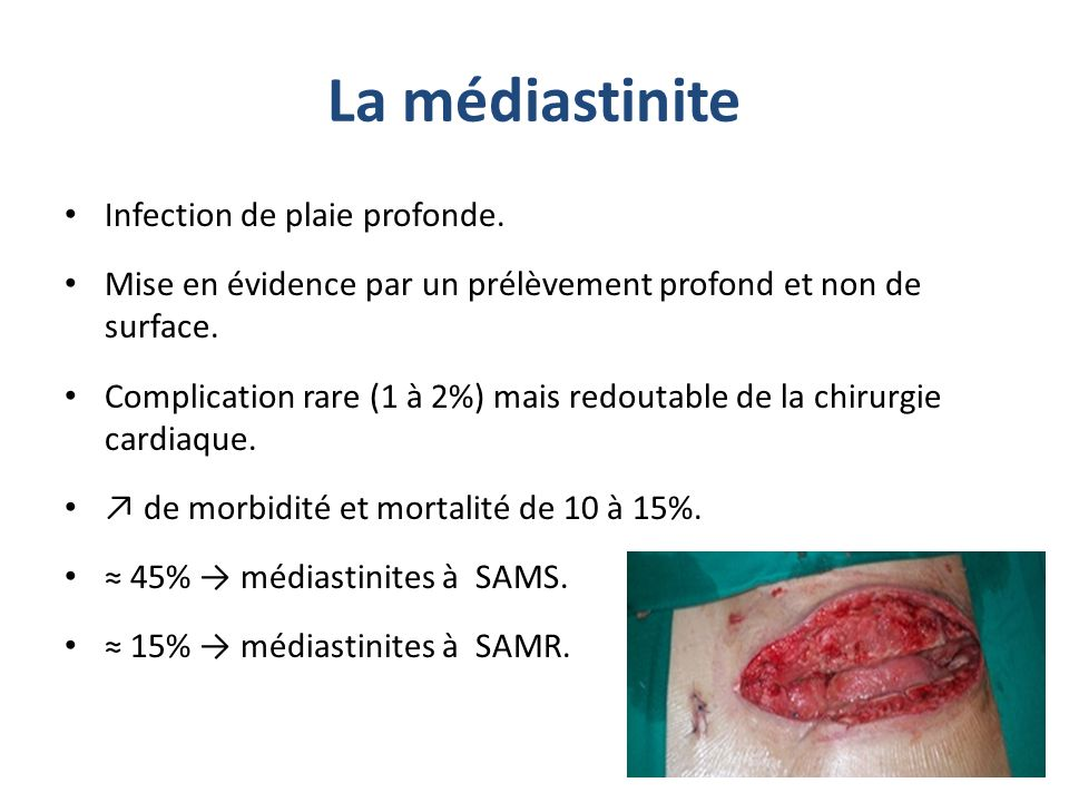 La médiastinite Infection de plaie profonde.