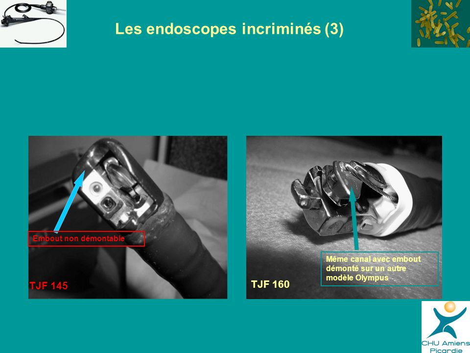 Les endoscopes incriminés (3)