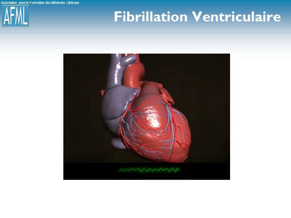 Fibrillation Ventriculaire