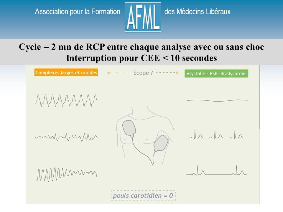 Cycle = 2 mn de RCP entre chaque analyse avec ou sans choc