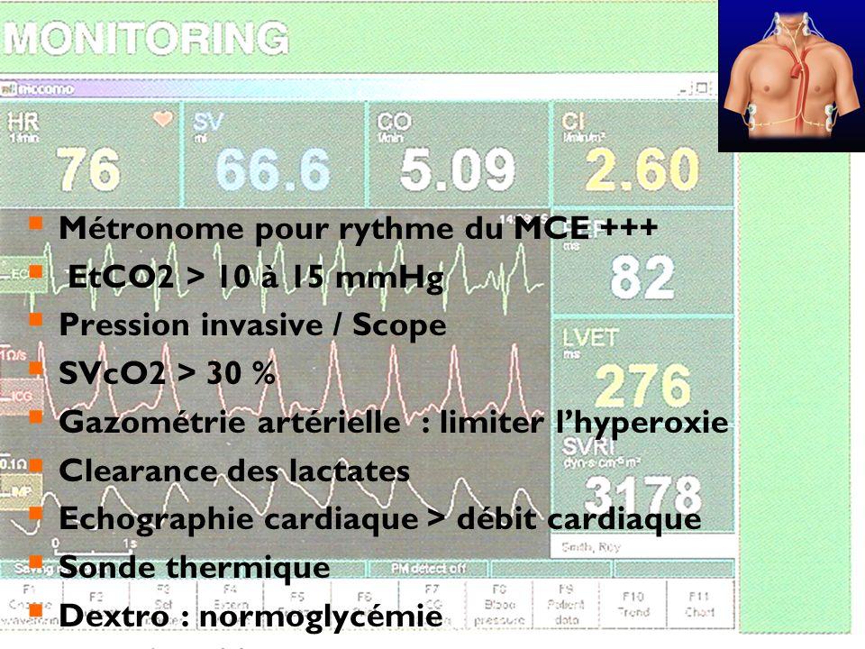 Métronome pour rythme du MCE +++