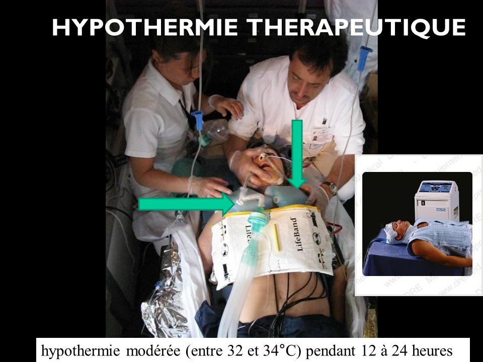 HYPOTHERMIE THERAPEUTIQUE