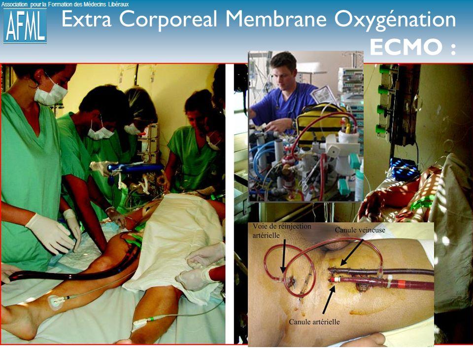 Extra Corporeal Membrane Oxygénation ECMO :