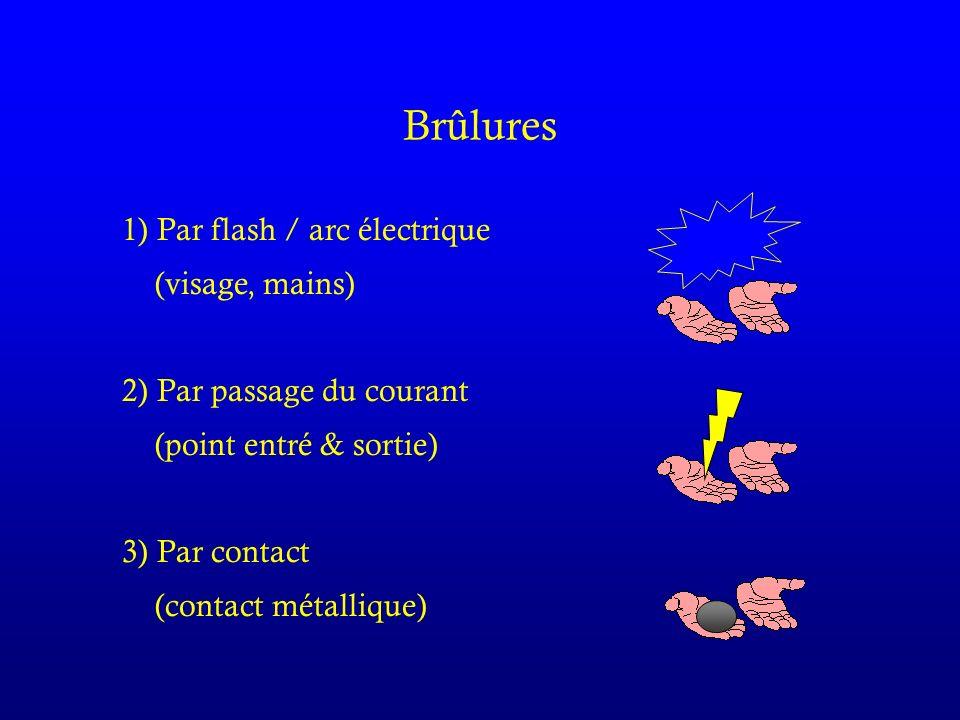 Brûlures 1) Par flash / arc électrique (visage, mains)