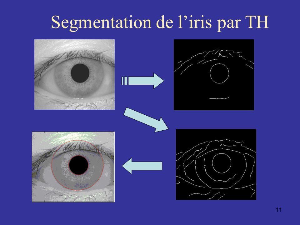 Segmentation de l'iris par TH
