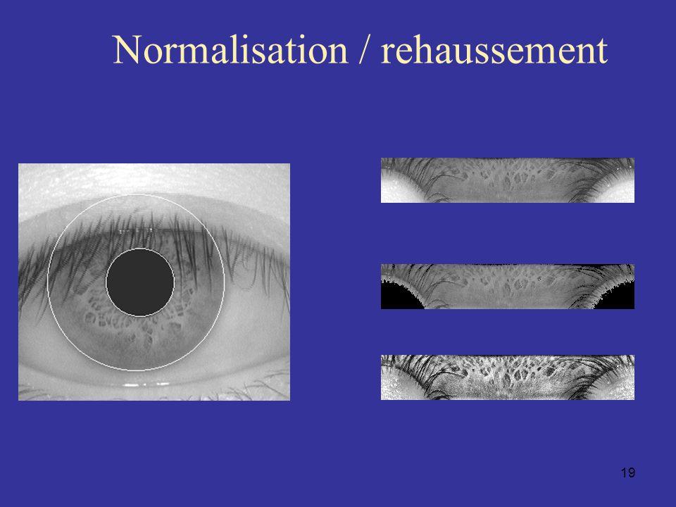 Normalisation / rehaussement