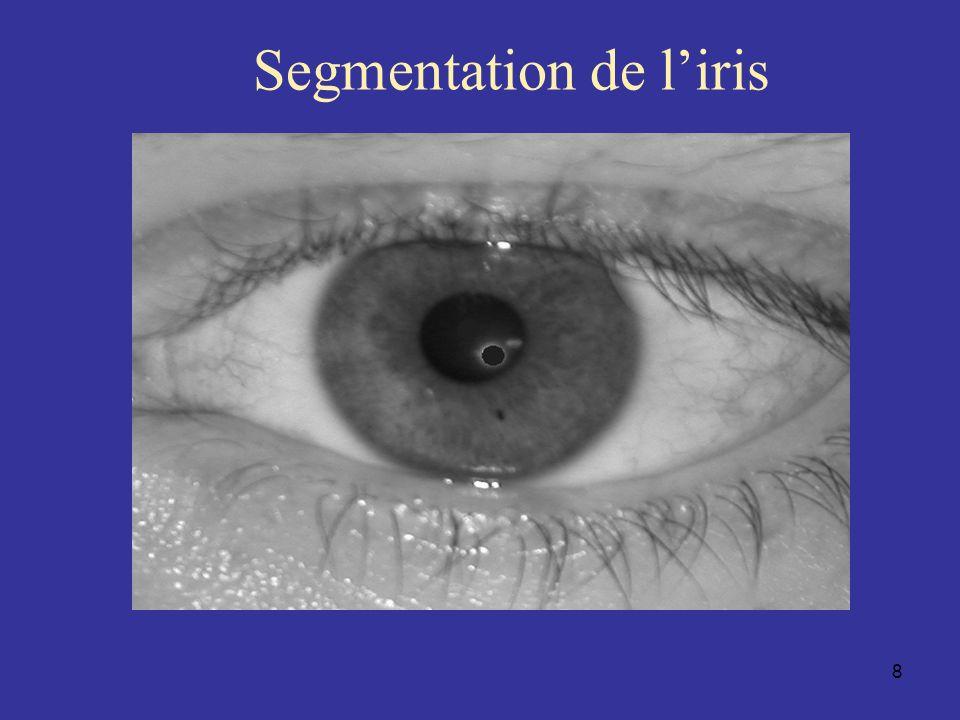 Segmentation de l'iris