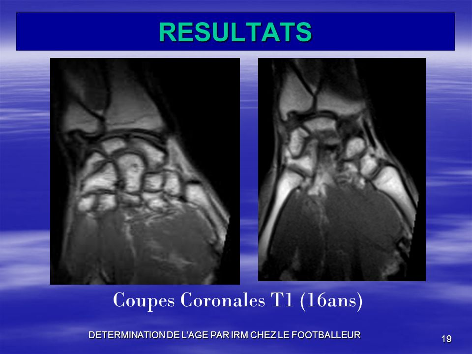 RESULTATS Coupes Coronales T1 (16ans)