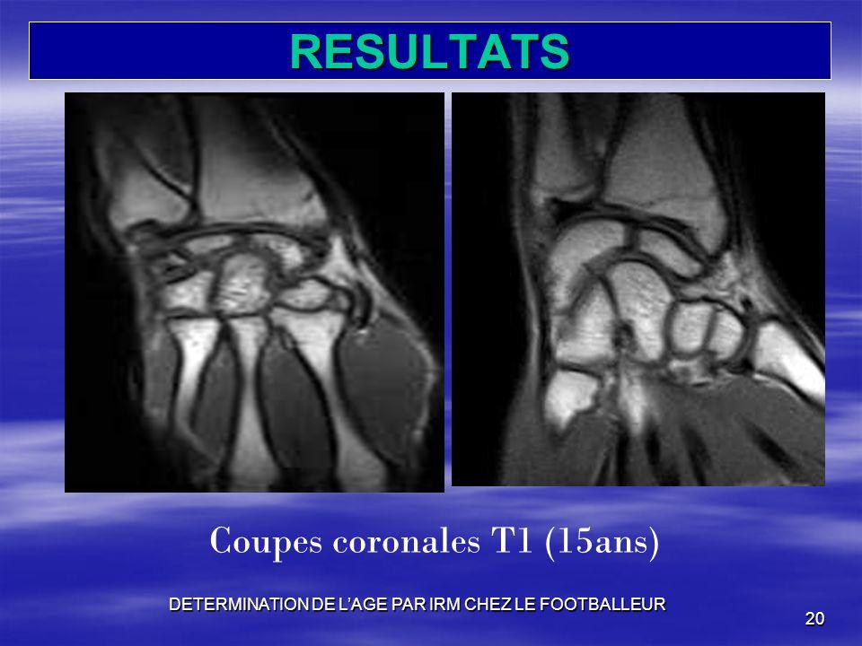 RESULTATS Coupes coronales T1 (15ans)