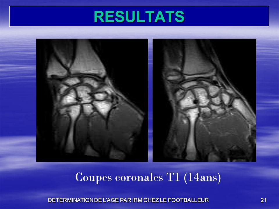 RESULTATS Coupes coronales T1 (14ans)