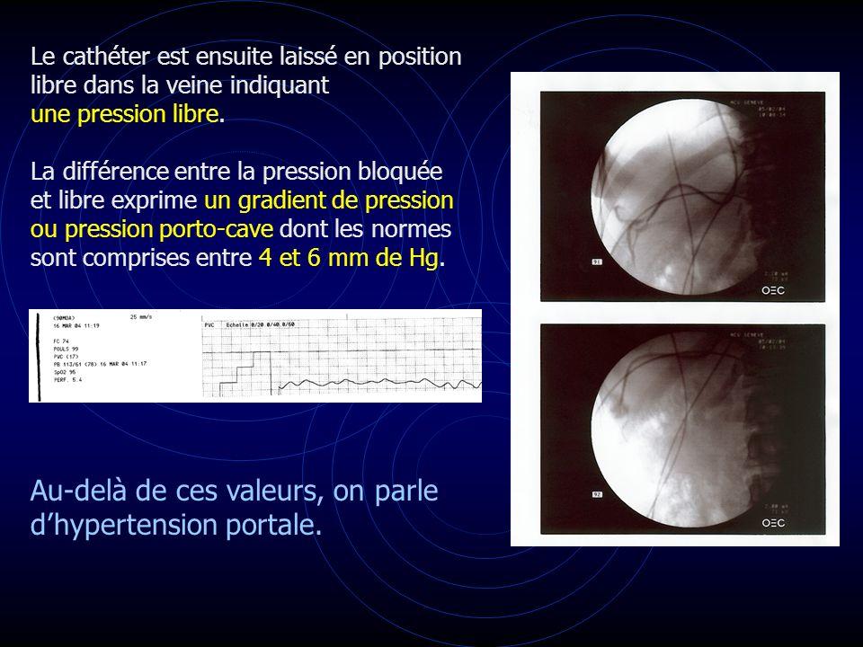 Au-delà de ces valeurs, on parle d'hypertension portale.