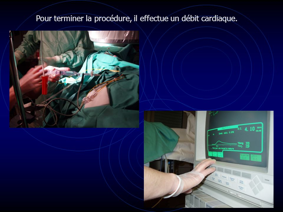 Pour terminer la procédure, il effectue un débit cardiaque.
