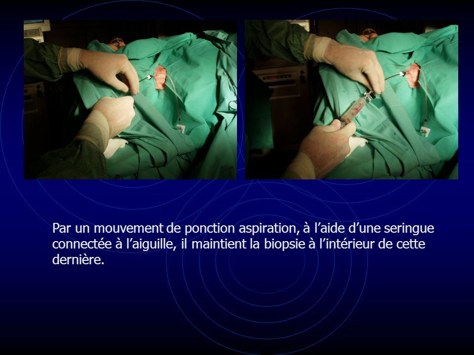 Par un mouvement de ponction aspiration, à l'aide d'une seringue connectée à l'aiguille, il maintient la biopsie à l'intérieur de cette dernière.