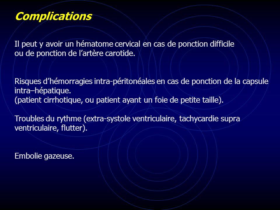 Complications Il peut y avoir un hématome cervical en cas de ponction difficile. ou de ponction de l'artère carotide.