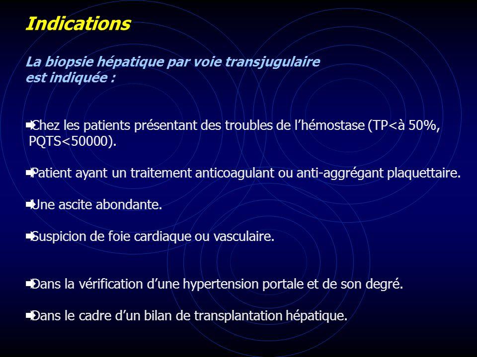 Indications La biopsie hépatique par voie transjugulaire