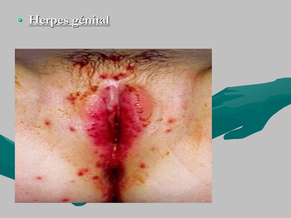 Herpes génital
