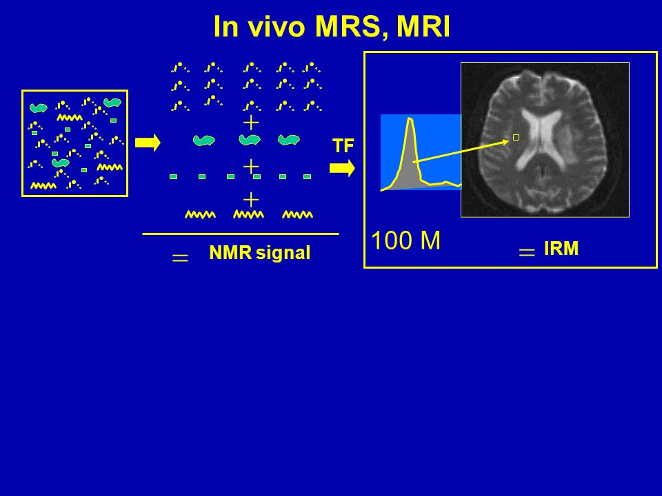 In vivo MRS, MRI  TF   100 M   IRM NMR signal