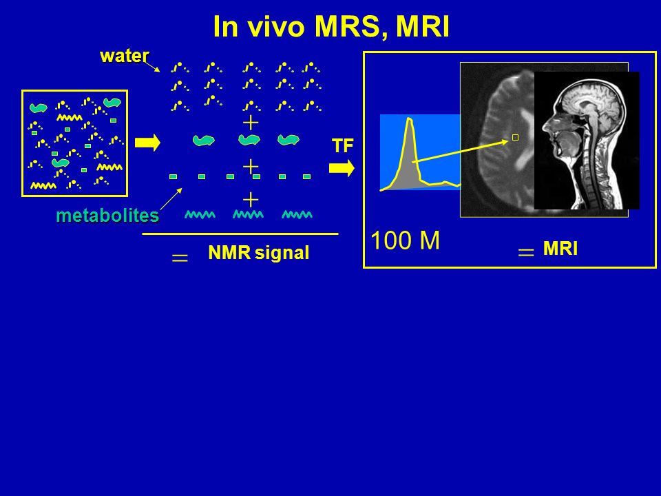 In vivo MRS, MRI water  TF   metabolites 100 M   MRI NMR signal