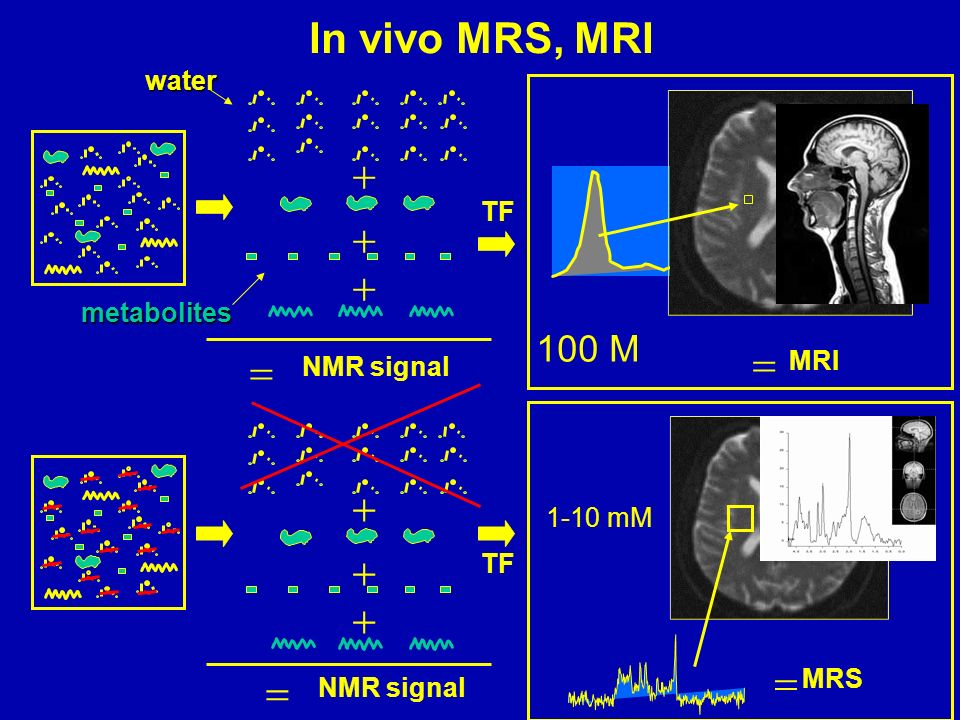 In vivo MRS, MRI           100 M water TF metabolites MRI