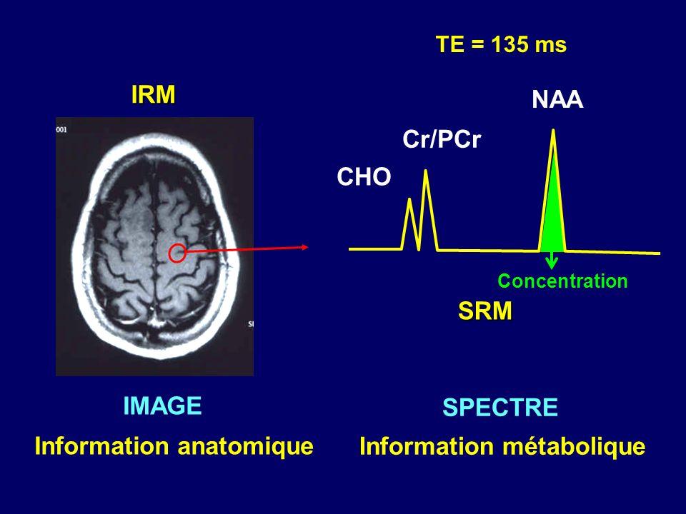 Information métabolique Information anatomique