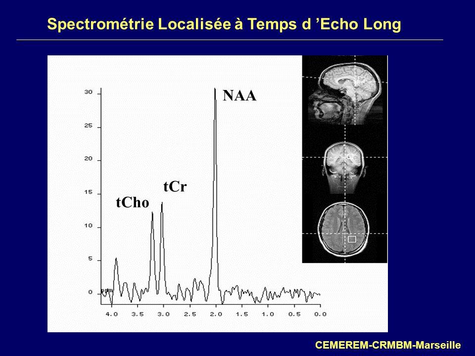 Spectrométrie Localisée à Temps d 'Echo Long