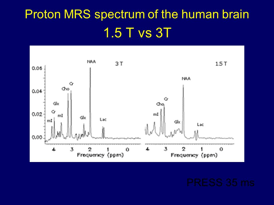 Proton MRS spectrum of the human brain 1.5 T vs 3T