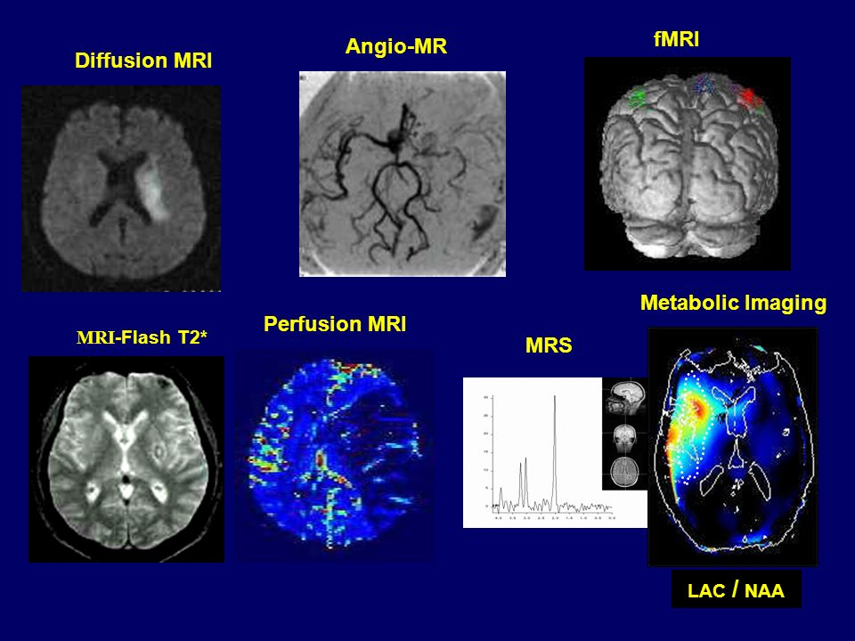 fMRI Angio-MR Diffusion MRI Metabolic Imaging Perfusion MRI MRS