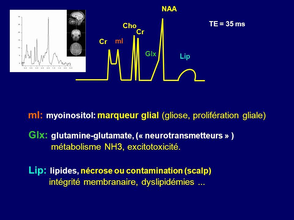 mI: myoinositol: marqueur glial (gliose, prolifération gliale)