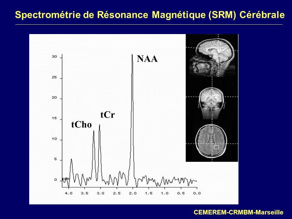 Spectrométrie de Résonance Magnétique (SRM) Cérébrale