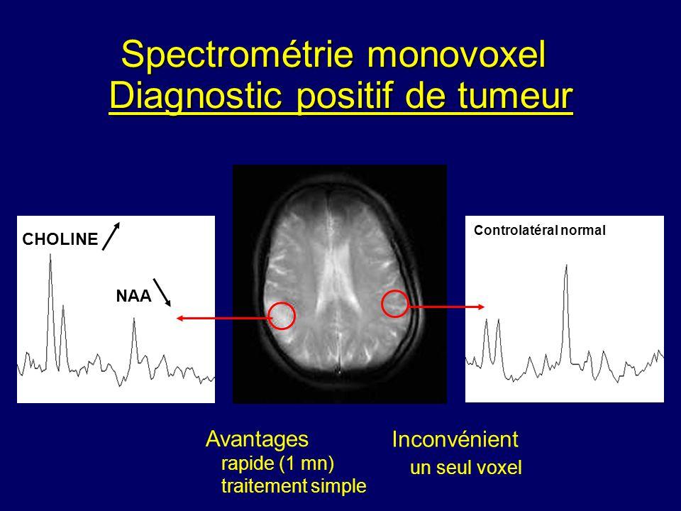 Diagnostic positif de tumeur