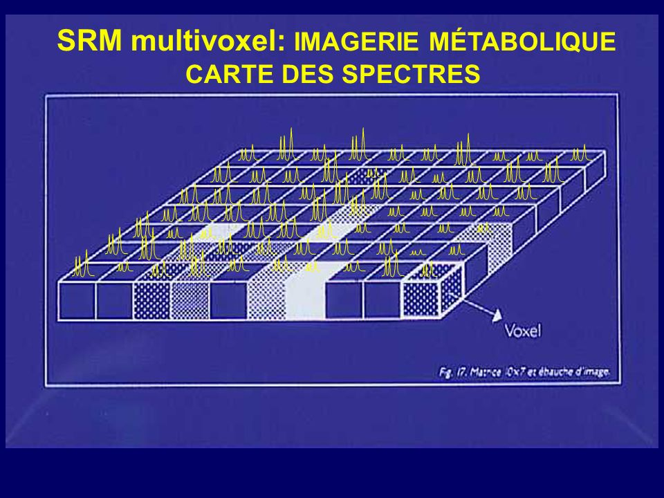SRM multivoxel: IMAGERIE MÉTABOLIQUE