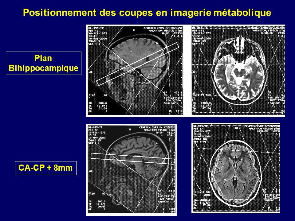 Positionnement des coupes en imagerie métabolique