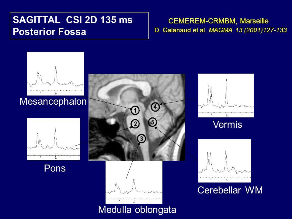 SAGITTAL CSI 2D 135 ms Posterior Fossa Mesancephalon Vermis Pons